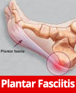 Plantar Faciitis